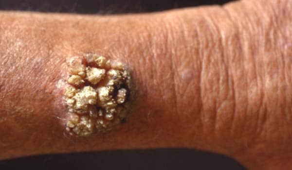 common warts pictures. Common skin problems. Warts: