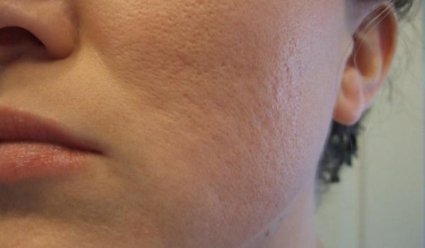Treat acne as soon as it develops