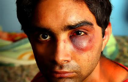 sourabh Indians attacked in Australia