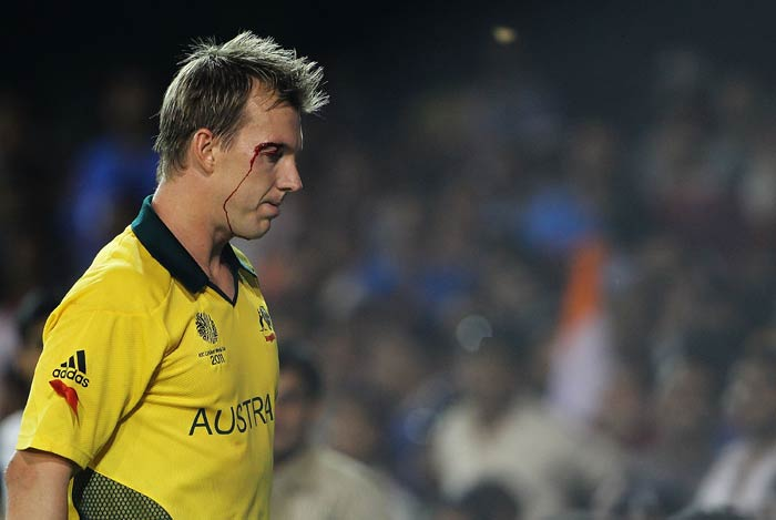 Brett Lee goes off the field, after injuring his eye trying to stop a ball to the boundary during the 2011 ICC World Cup quarter final match between Australia and India at Sardar Patel Stadium in Ahmedabad. (Getty Images)