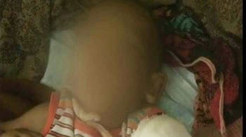 Video : 3-yr-old with cigarette burns, bite marks battles for life, stepfather arrested