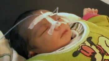 Video : Baby's intestines operated on 'by mistake'