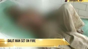 Video : Dalit man set on fire in Madhya Pradesh