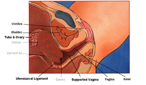 Tear in the cervix, which may be repaired with stitches, which occurs in less than 1% of cases.