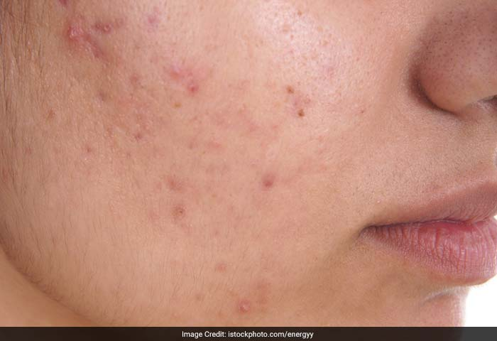 Acne: Acne is due to over activity and plugging of the oil glands. The main underlying cause of acne is increased levels of hormones during adolescence.