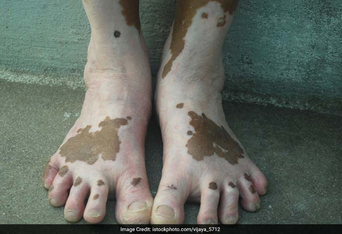 Vitiligo: Vitiligo, also known as leucoderma, is a relatively common skin disorder, in which white spots or patches appear on the skin caused by the destruction or weakening of the pigment cells.