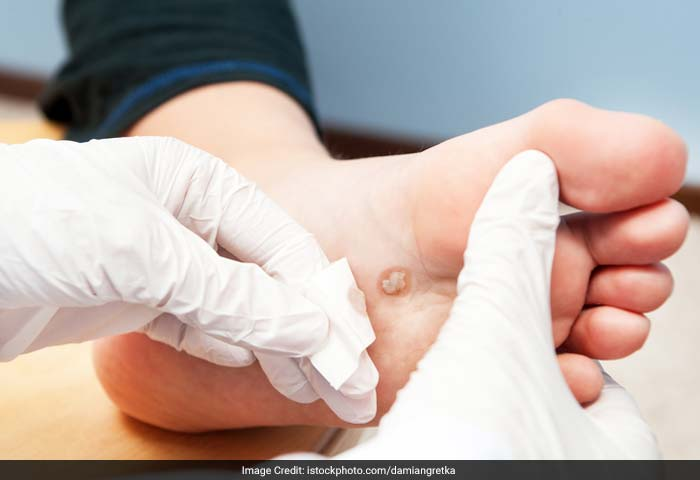 Warts: Warts are skin growths caused by a viral infection in the top layer of the skin. Viruses that cause warts are called human papillomavirus (HPV).