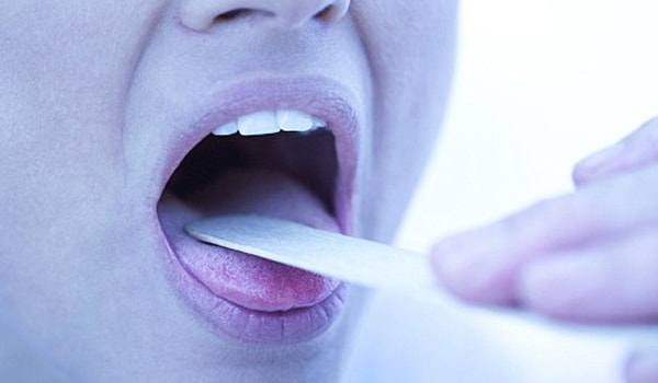 HIV positive people do complain of a sore throat.