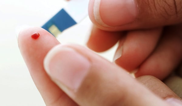 It is important to always keep in mind that all the above symptoms are non-specific and commonly occur in a variety of conditions. To establish a diagnosis of HIV/AIDS a blood test that has been confirmed is essential. A physical examination and other tests are necessary to rule out other illnesses.