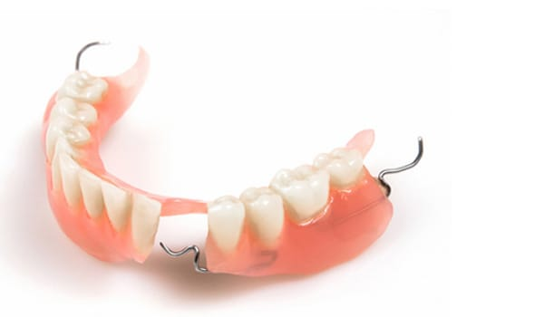 Dentures that are not cleaned properly can also harbour odour causing bacteria and food particles.