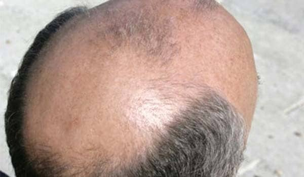 Androgenic alopecia also known as male pattern baldness is the most common type of hair loss. It occurs more frequently in men than in women. It is a permanent type of hair loss and occurs in a characteristic pattern on the scalp. The hair loss begins at the temples and at the top of the head towards the back, causing a receding hairline and a bald spot. Balding may begin at any age after puberty and can range from partial loss to complete baldness. Hormonal imbalance, mainly testosterone, and genetic factors are responsible for this type of hair loss.