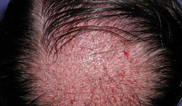 Hair transplantation: This involves the transplantation of hair follicles from areas of the scalp where hair is still growing to areas where it is not. This carries a low risk for skin infections and may cause minor scarring in the donor areas.