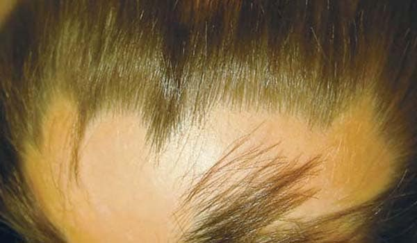 Alopecia areata leads to patchy hair loss on the scalp. The exact cause is not known, but it is thought to be the result of the bodys immune system attacking the hair follicles.