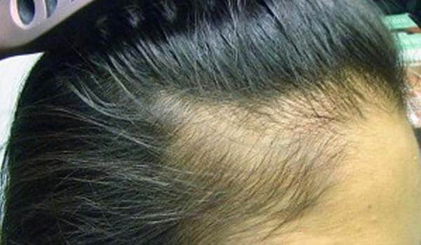 Traction alopecia is caused due to long-term pulling on the hair. This is caused by certain hairstyles, such as tight braids. The hair loss is usually reversible once the cause of the pulling is eliminated.