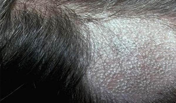Causes: Following are the causes for baldness:<ul><li>Heredity and aging.</li><li>Hormonal changes.</li><li>A serious illness or fever.</li><li>Medication such as cancer chemotherapy or too much Vitamin A.</li><li>Emotional or physical stress.</li><li>A self-induced reduction of hair by pulling it out (traction alopecia).</li><li>Poor nutrition.</li><li>Disease.</li><li>Childbirth.</li><li>Scalp Infection.</li><li>Hair Treatments and use of chemicals.</li></ul>