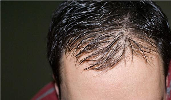 Baldness or alopecia results when hair loss occurs at an abnormally high rate, replacement occurs at an abnormally slow rate or when normal hairs are replaced by thinner, shorter ones.