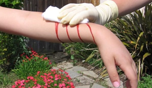 Apply a clean pad of cotton larger than the size of the wound and press firmly with the palm until the bleeding becomes less or stops.