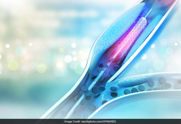 Coronary angioplasty is a procedure used to open blocked or narrowed coronary (heart) arteries. The procedure improves blood flow to the heart muscle. It reduces damage to the heart muscle caused by heart attack.