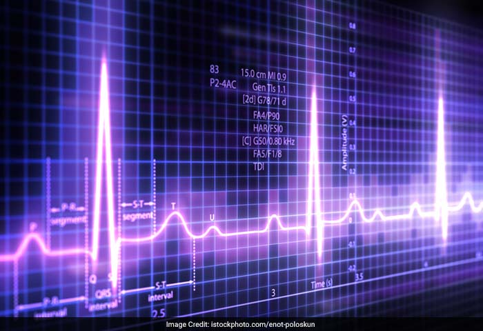 The electrocardiogram (ECG) is a diagnostic tool that measures and records the electrical activity of the heart in exquisite detail. Interpretation of these details allows diagnosis of a wide range of heart conditions.