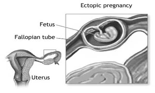 Pre-eclampsia: Pre-eclampsia is a medical condition in which hypertension arises in pregnancy (pregnancy-induced hypertension) in association with significant amounts of protein in the urine.