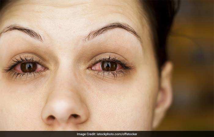 An eye infection is usually caused by bacteria or a virus. Eye infections include styes, conjunctivitis, trachoma etc. and can occur in any age group.