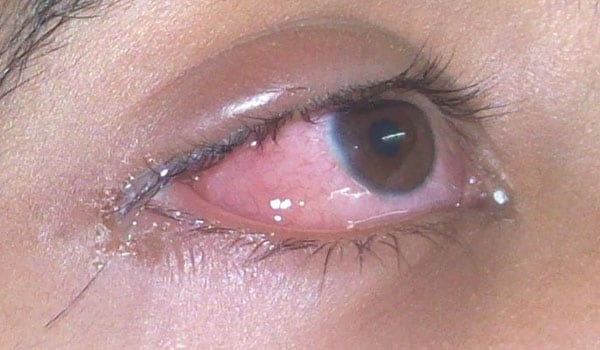 conjunctivitis or eye flu is generally not serious but contagious it causes redness itching discharge watery or thick crusting that forms overnight