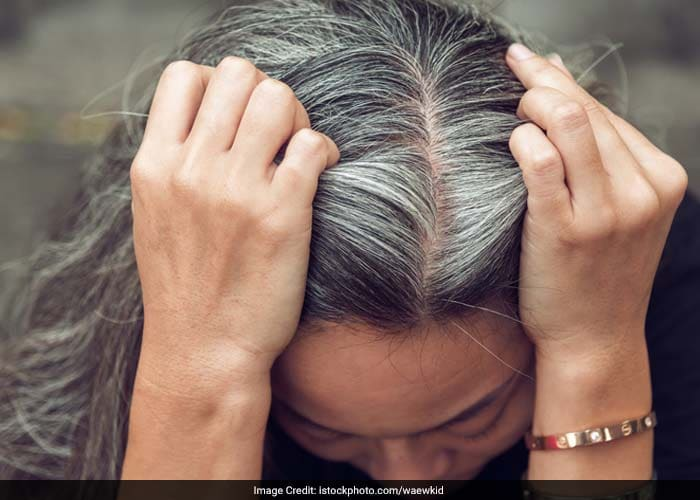 Gray hair can also be the result of a medical condition. If you are deficient in vitamin B12 or suffer from a thyroid imbalance, it can also result in premature graying of hair.