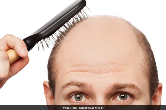 Hereditary thinning or balding - Hereditary balding or thinning is the most common cause of hair loss. The tendency can be inherited from either the mothers or fathers side of the family. Women with this trait develop thin hair, but do not become completely bald. The condition is called androgenetic alopecia and it can start in the teens, twenties or thirties.