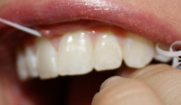 Flossing removes germs and food particles from between the teeth and along the gum line. It removes food particles that are not removed by brushing. The floss should be inserted between the teeth, using a gentle sawing motion. It should then be moved up and down the side of each tooth.