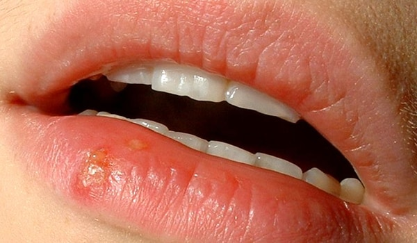 If you or your partner has a cold sore, it is advisable to avoid oral sex as this can spread the virus to the genitals.