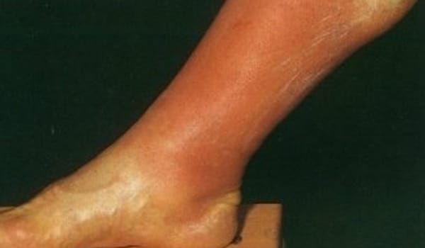 Thrombophlebitis leads to redness along the affected segment of the vein.