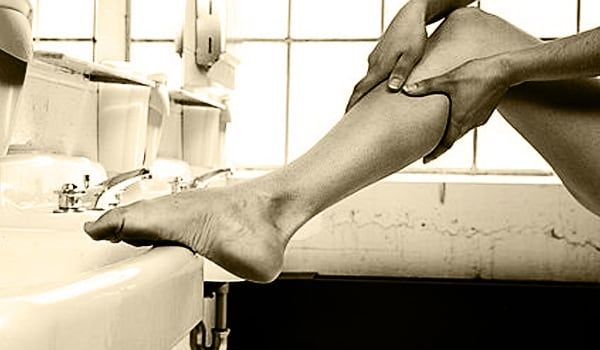 Clots in the leg veins may cause symptoms such as pain, tenderness, swelling, discolouration and ulceration of the skin depending on the site of the clots.