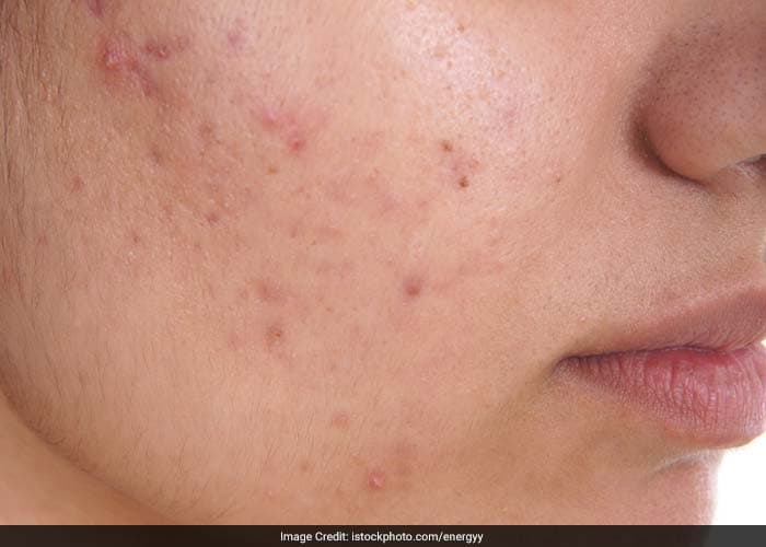 The most efficient way to avoid acne scarring is by preventing acne from worsening. Don