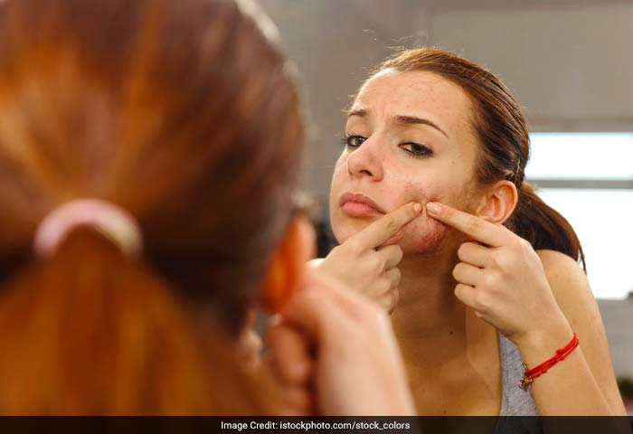 Inflamed acne lesions are more likely to leave scars than non-inflamed lesions and pimples. Avoid aggressive scrubbing, harsh skin care products, etc, which may irritate the skin further and lead to inflammation.