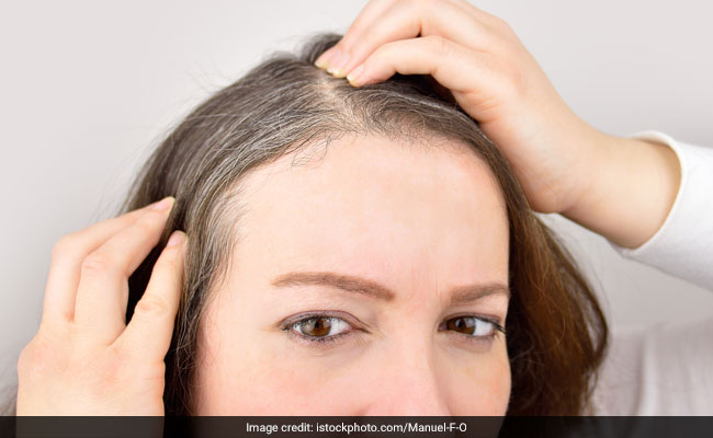 7 Amazing Home Remedies For Turning Grey Hair Into Black
