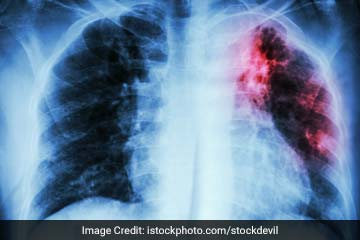 Is Tuberculosis A Dangerous Disease?
