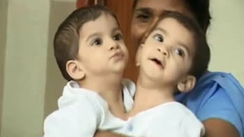 Video : Betul's conjoined twins to be separated, thanks to NDTV viewers' help