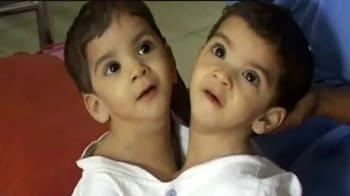 Videos : सीने से जुड़ी बच्चियों को मिलेगी जिंदगी