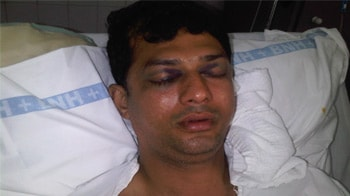 Video : Mumbai road rage: NRI has skull fracture after being hit with baseball bat