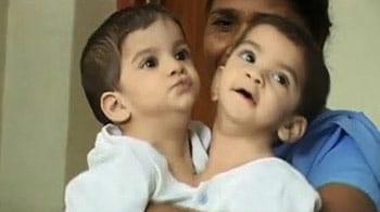 Videos : आसान नहीं था जन्म से जुड़ी बच्चियों को अलग करना