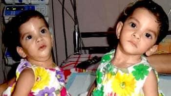 Videos : जन्म से जुड़ी अराधना-स्तुति की ऑपरेशन के बाद पहली तस्वीरें