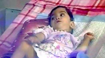 Videos : ऑपरेशन से अलग की गईं स्तुति-आराधना हुईं एक साल की...