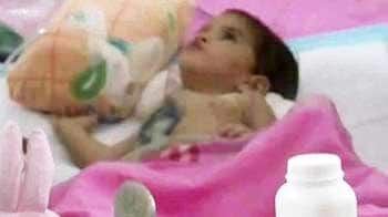 Video : Betul's baby Aradhana passes away, was conjoined twin till recently