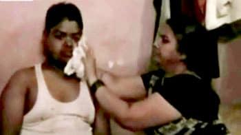 Videos : भिखारी बनाने के लिए युवक को गरम छड़ों से दागा