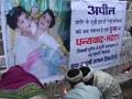 Videos : कामयाब रहा जुड़ी बच्चियों का ऑपरेशन