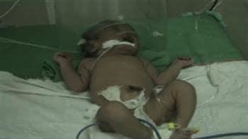 Video : नवजात बच्चों की मौत जारी