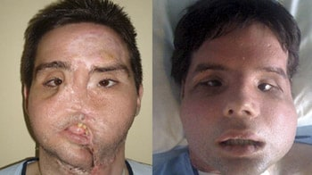 Video : World's first full face transplant displays new look