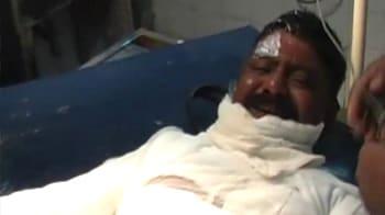 Video : Mumbai cop set ablaze by auto driver dies