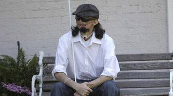 Video : Texas man awaits rare face transplant