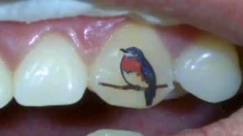 Video : शरीर पर नहीं, दांतों पर बनवाएं टैटू